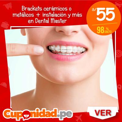 S/ 55 por brackets cerámicos o metálicos + instalación + radiografía panorámica + modelo de estudio + set de fotografías + blanqueamiento dental + beneficio en mensualidades